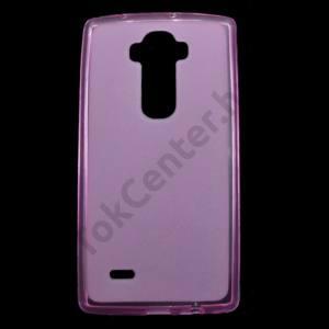 LG G Flex2 (H955) Telefonvédő gumi / szilikon (fényes keret) RÓZSASZÍN