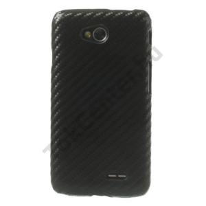 LG L65 (D280) Műanyag telefonvédő (karbon minta) FEKETE