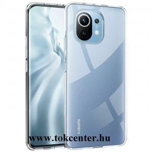 Xiaomi Mi 11 Szilikon telefonvédő (ultravékony) ÁTLÁTSZÓ