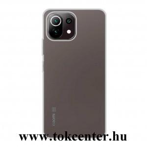 Xiaomi Mi 11 Lite 5G Szilikon telefonvédő (ultravékony) ÁTLÁTSZÓ